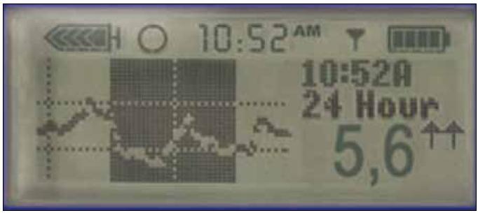 Informace na displeji pumpy. Každých 5 min v průběhu 24 hod, tedy denně 288 hodnot glykemie a trendu, který vyjadřují šipky.