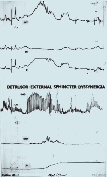 Synchronní záznam urodynamického vyšetření při DESD (křivky shora: P<sub>ves</sub>, P<sub>abd</sub>, P<sub>det</sub>, EMG sfinkteru, UFM, mikční objem).