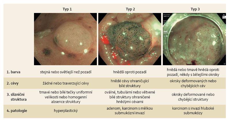 NICE klasifikace časných kolorektálních neoplazií. Fig. 1. NICE classification of early colorectal neoplasms.