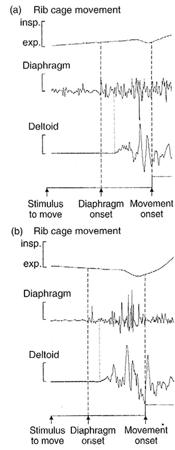 EMG aktivita m. deltoideus a kostální části bránice při rychlé flexi v ramenním kloubu. Aktivita v bránici předchází aktivitě v m. deltoideus jak při nádechu (a) tak i při výdechu (b). (Převzato z: Richardson C. A., Hodges P.W., Hides J. A.:Therapeutic Exercise for Spinal Stabilisation in Low Back Pain. 2. vyd., Churchill Livingstone, 2004.)