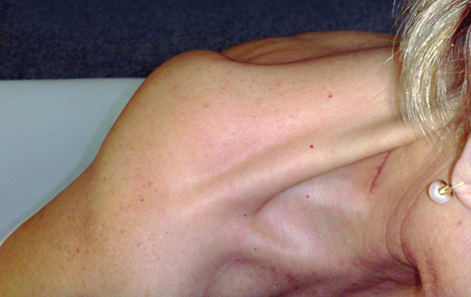Obr. 7a, b Scapula alata vpravo při oslabení horního trapezu v důsledku léze plexus cervicalis vpravo (poškození plexus cervicalis při extirpaci krčních uzlin). Je patrná výrazná atrofie horního trapezu a prohloubení supraklavikulární jamky vpravo (7a) a v oblasti horního úhlu odstávající pravá lopatka (7b-pohled shora).