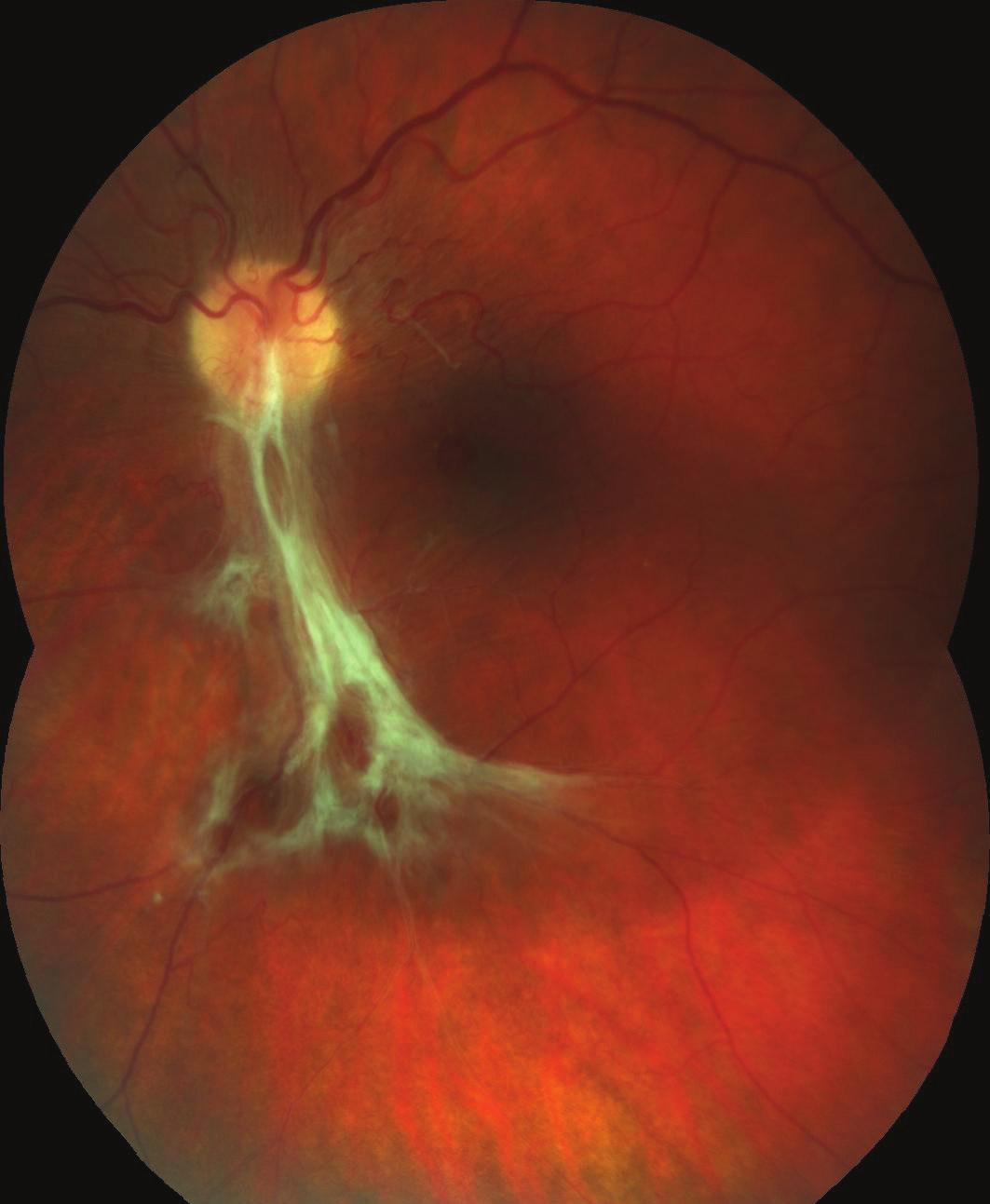 Barevný fotografický snímek fundu levého oka: preretinální fibróza při dolní temporální arkádě způsobující nařasení sítnice v centrální krajině