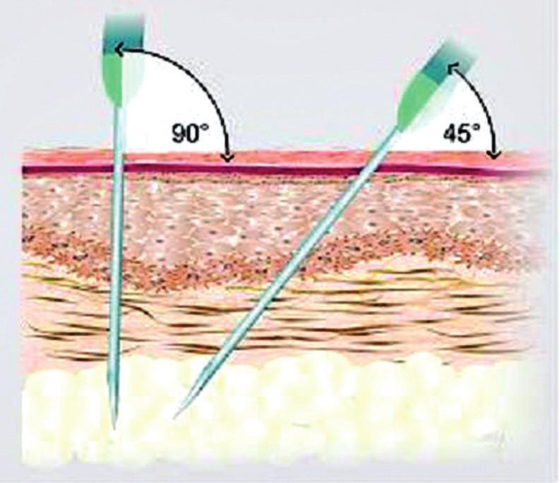 Způsob aplikace preparátu do podkoží (aplikace musí být provedena do hlubokých vrstev podkoží, ideálně do oblasti podkožního tuku)