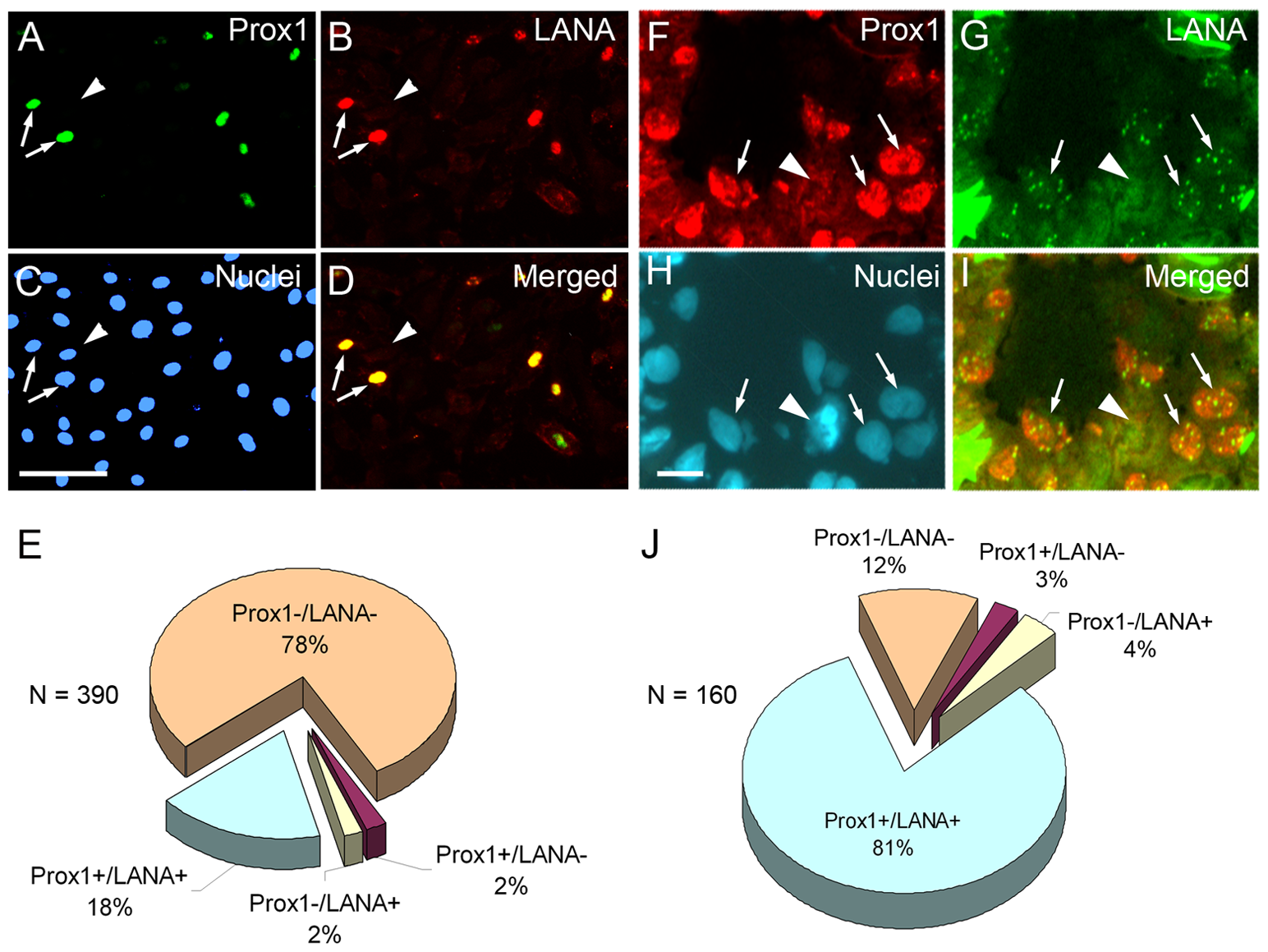 PROX1 is upregulated only in KSHV-infected endothelial cells <i>in vitro</i> and <i>in vivo</i>.