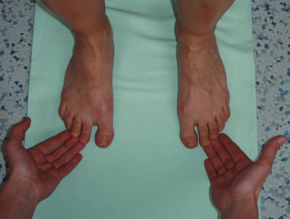 Test stability, kdy se snažíme vyšetřovanému přizvednout prsty od podložky.