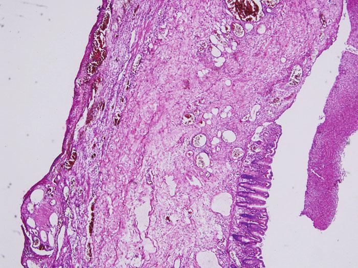 Stěna střeva s úplným chyběním muscularis propria, sliznice je zčásti zachovalá a zčásti nekrotická (barvení hematoxylin- eosin, zvětšeno 40x) Fig. 1. Colonic wall with complete absence of the muscularis propria layer, the mucous membrane is partially preserved and partially necrotic (hematoxylin-eosin staining, 40x enlargement)
