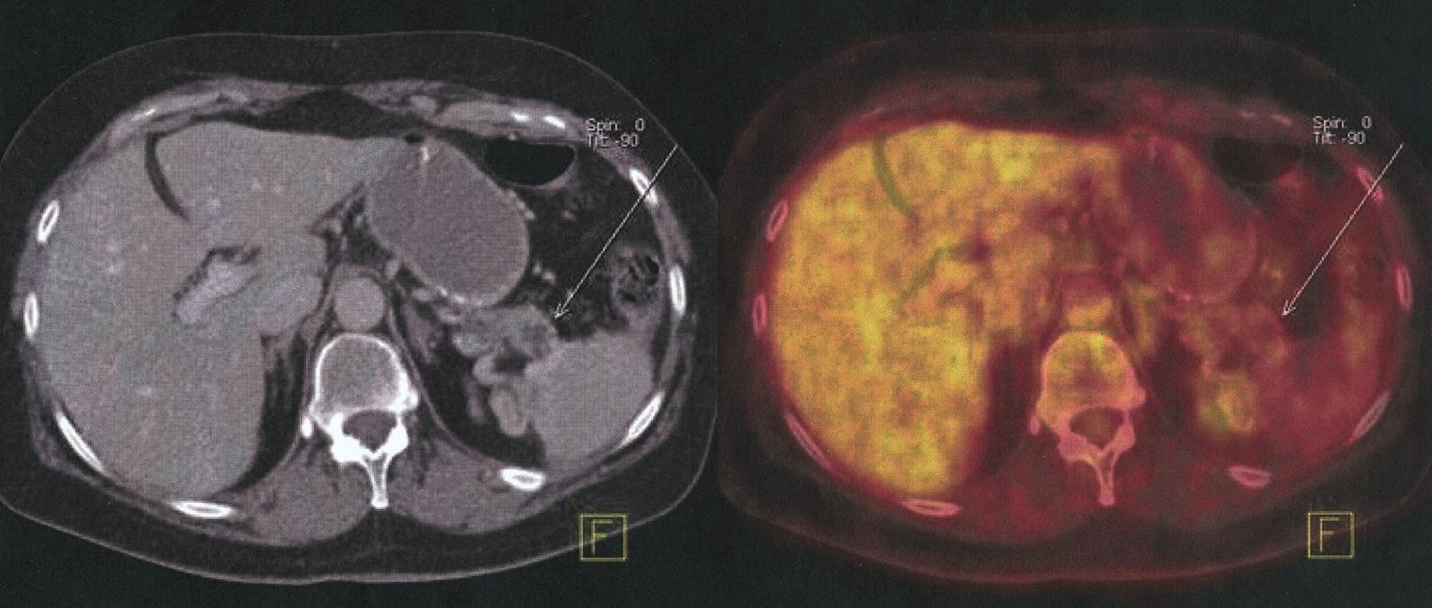 Správná a přesná lokalizace tumoru hlavy pankreatu T2, N0, M0 Fig. l. Correct and precise localization of pancreatic head tumour T2, N0, M0