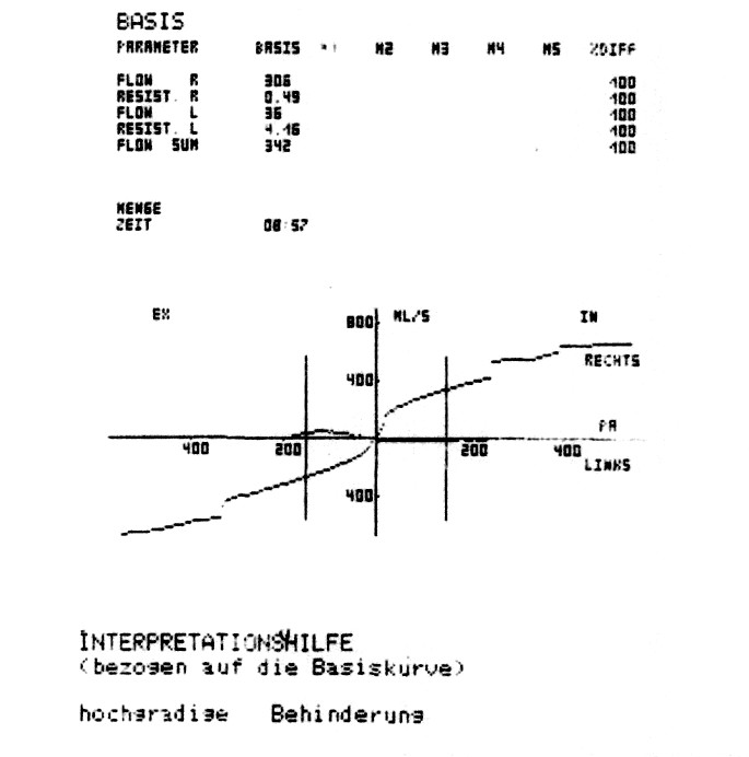 Rinomanometrický záznam u nemocného s vybočením nosní přepážky doleva s výrazně omezeným nosním průtokem vlevo