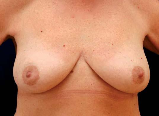 Diskrétní vtažení pravé mamily způsobené karcinomem v oblasti centrálního segmentu.