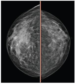 Mamografie pravého prsu Fig. 10. Mamography of the right breast