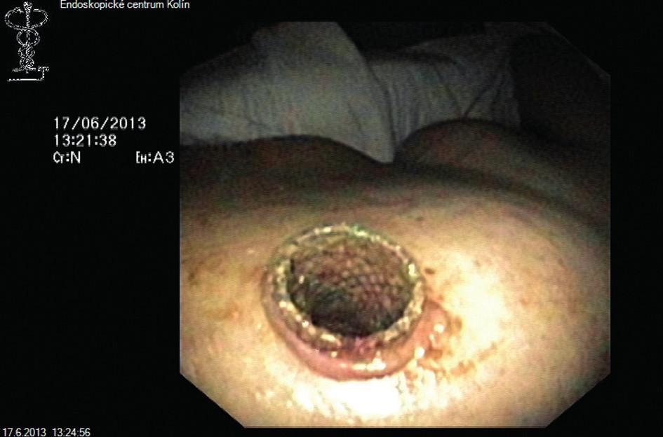 Perkutánně zavedený metalický stent Fig. 2: Percutaneously implanted metallic stent