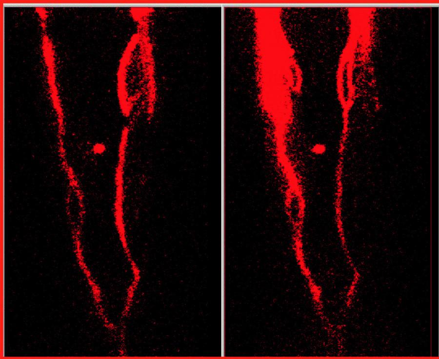 Radionuklidová flebografie s wholebody obrazy dolních končetin v přední projekci, s pohledem shora, kde v horní části obrazů je oblast kotníků, v dolní části projekcí je vykresleno spojení ilických žil do dolní duté žíly, oblast kolenních kloubů je mezi nimi označena markerem. Obraz vlevo je se zataženými škrtidly kolem kotníku a v podkolenní, obraz vpravo je po uvolnění škrtidel. V porovnání obou obrazů je patrný neprůchodný HŽS pravé dolní končetiny, kdy se nezobrazuje na obou obrazech HŽS od kolene výše, odpovídající oblasti neprůchodné v. parva a v. femoralis, dobře se vykresluje až v. iliaca, Aktivita se dostává do povrchového žilního systému, kde na obou obrazech je patrný průběh v. sapheny magny.