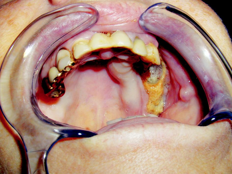 Nekróza alveolárního výběžku maxily při užívání bisfosfonátů.