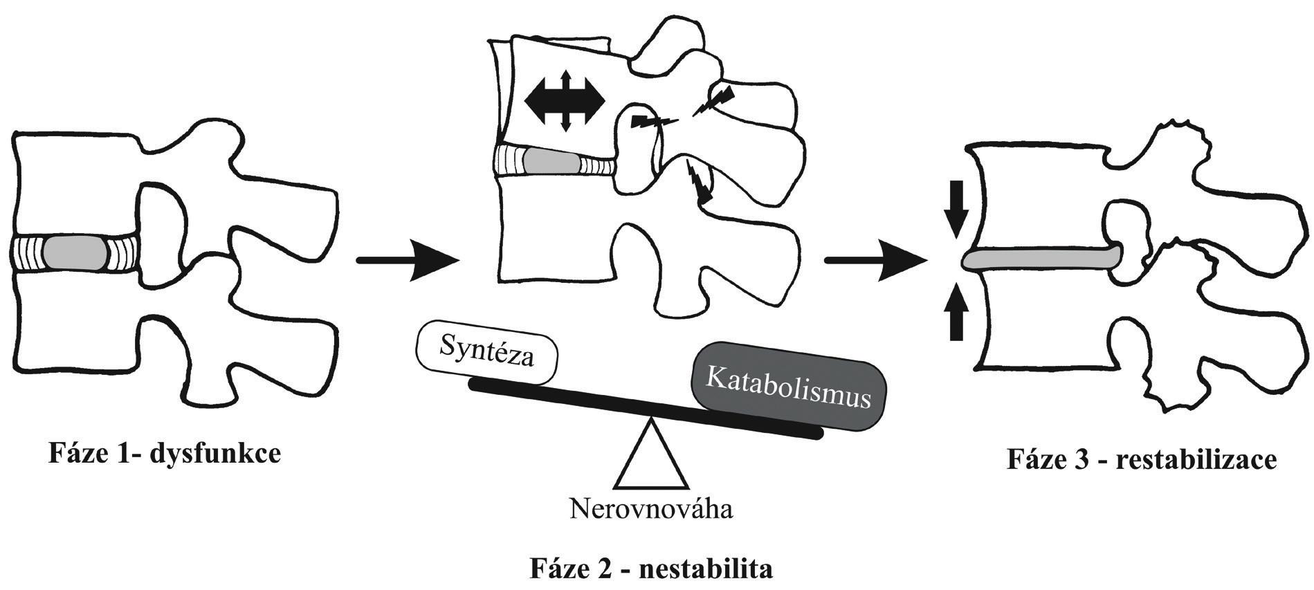 Fáze degenerativního procesu bederní páteře podle Kirkaldy-Willise a Farfana
