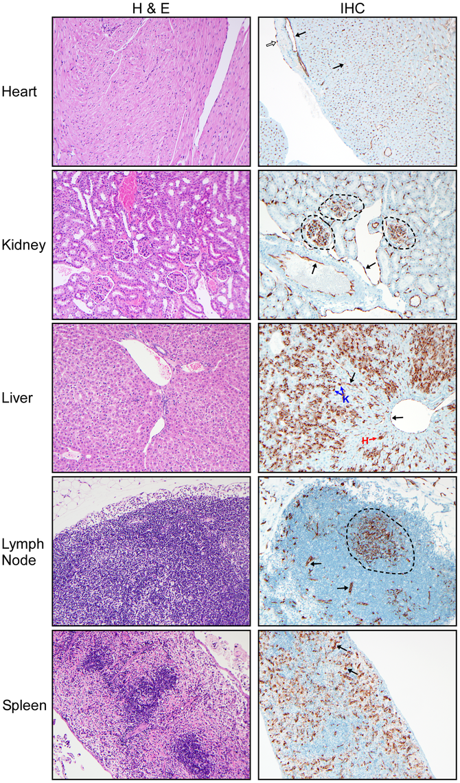 Histological analysis of peripheral organs from Andes virus infected hamsters.