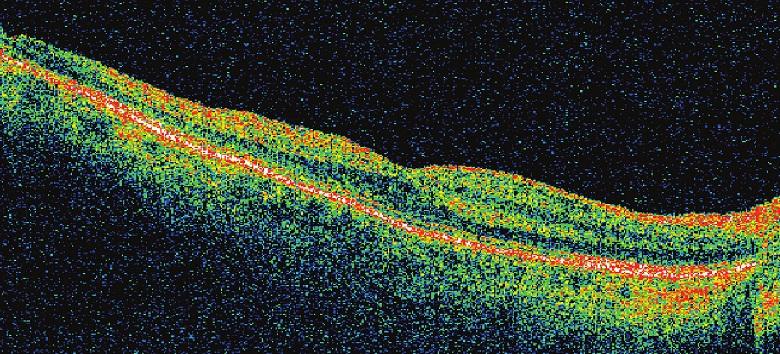Pac. č. 5 – OCT potvrdila oftalmoskopický nález