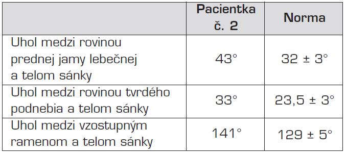 Porovnanie kefalometrických parametrov pacientky s priemernými hodnotami pre európsku populáciu. Evidentná je tendencia ku rastu sánky smerom dozadu a dole, čo vedie ku zvyšovaniu vertikálneho rozmeru dolnej tretiny tváre.