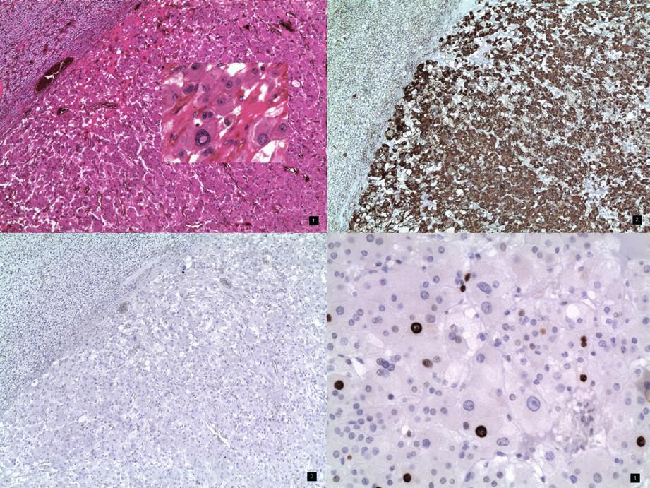 1. Onkocytom nadledviny s okrajem tlakově atrofické adrenální kůry. Barvení hematoxylin – eozin, obj. 4×. Vložený obrázek – onkocyty – detail, zvětšení 20× 2. Onkocytom nadledviny se silně pozitivním imunohistochemickým průkazem mitochondrií v cytoplazmě nádorových buněk. Slabě pozitivní je i nenádorová kůta nadledviny, obj. 4× 3. Onkocytom nadledviny s negativním imunohistochemickým průkazem chromograninu – neuroendokrinního markeru. Negativní je rovněž kůra nadledviny, obj. 4× 4. Onkocytom nadledviny – imunohistochemický průkaz proliferační aktivity – Ki-67 (MIB1). Jaderná pozitivita nádorových buněk ložiskově variabilní celkově 7%