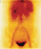 Statický scintigram dutiny břišní za 15 minut po i.v. Aplikaci radiofarmaka.