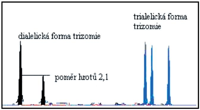 Příklad trizomie