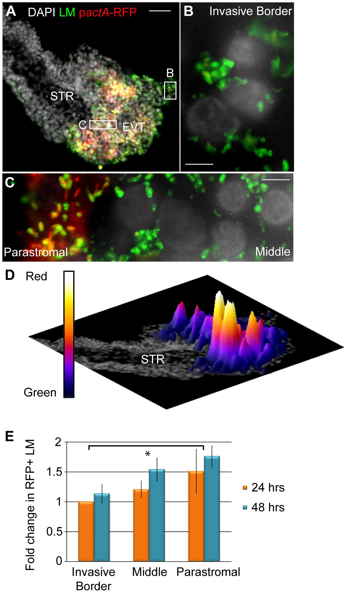 <i>L. monocytogenes</i> (LM) vacuolar escape rates vary across subpopulations of trophoblasts.
