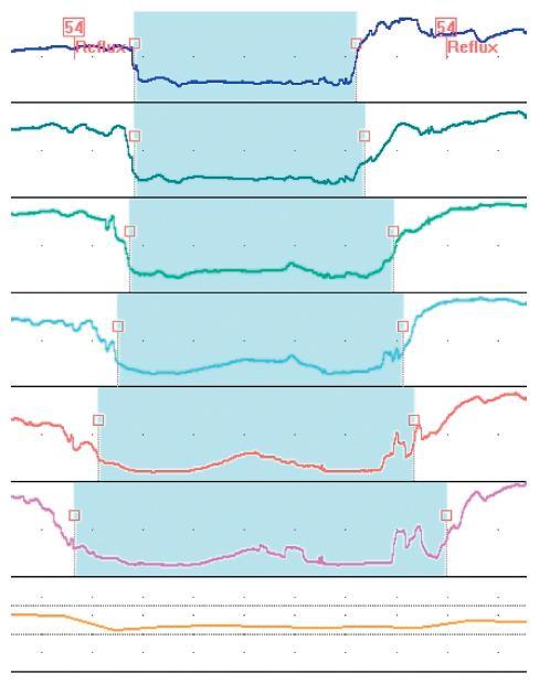 Refluxní epizoda: 24hodinová jícnová impedance, reflux tekutého obsahu zasahuje všechna čidla impedanční sondy, včetně proximálního čidla (Z1) umístěného těšně nad horním jícnovým svěračem.