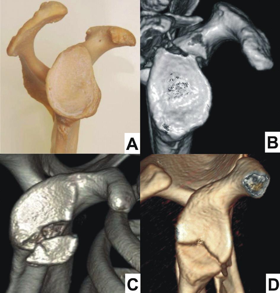 Zlomeniny glenoidu: A – normální glenoid, B – zlomenina horního glenoidu; C – zlomenina předního glenoidu; D – zlomenina dolního glenoidu. Fig. 8: Fractures of glenoid fossa: A – normal glenoid fossa; B – fracture of superior glenoid;  C – fracture of anterior glenoid; D – fracture of inferior glenoid