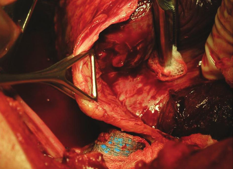 Peroperační snímek otevřené dekortikace u chronického empyému