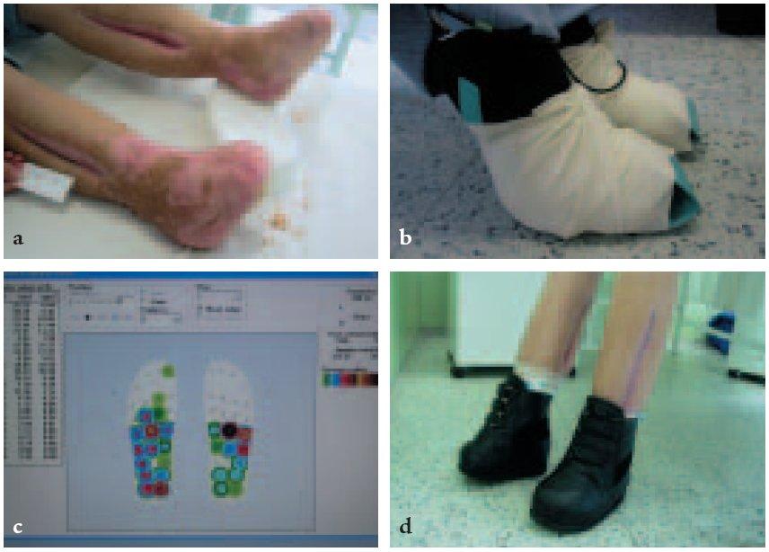 Vyšetření biomechaniky nohy a rozložení lokálních tlaků na plosce systémem Parotec při konstrukci individuální obuvi.