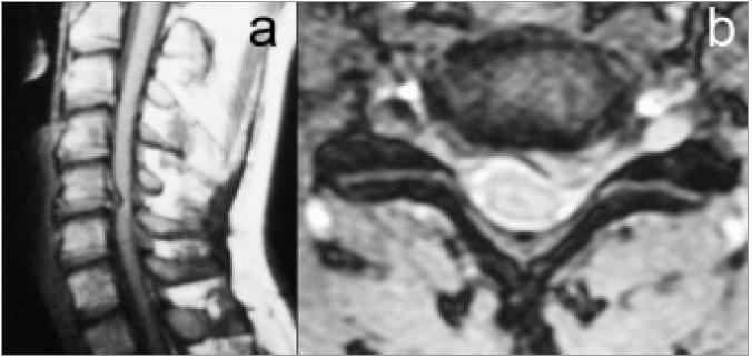 MR zobrazení měkkého výhřezu disku C5/6 laterálně doleva: a) Obraz v sagitální rovině v T1-sekvenci. b) Transverzální zobrazení v T2-sekvenci.