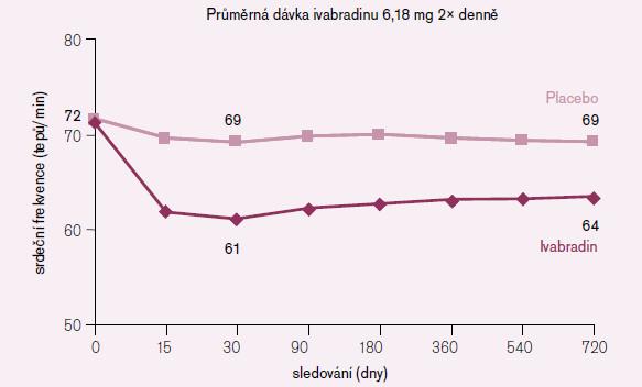 Srdeční frekvence v průběhu podávání ivabradinu (celá populace studie).