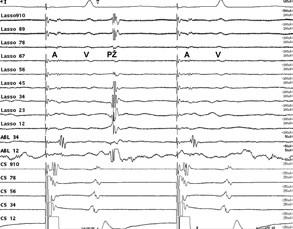 A: V Lasso katétru vidíme ještě další oddálení elektrické aktivity z plicní žíly (PŽ), kdy se aktivita z plicní žíly dostává až za elektrický signál komory (V). B: Elektrická izolace plicní žíly, kdy v Lasso katétru jso u signály ze síně (A) a komory (V) a již chybí elektrický signál z plicní žíly.