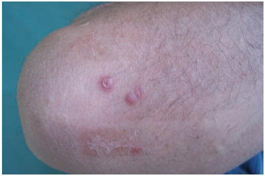 Klinický nález necharakteristických papul u pacienta na pravém lokti v září 2009