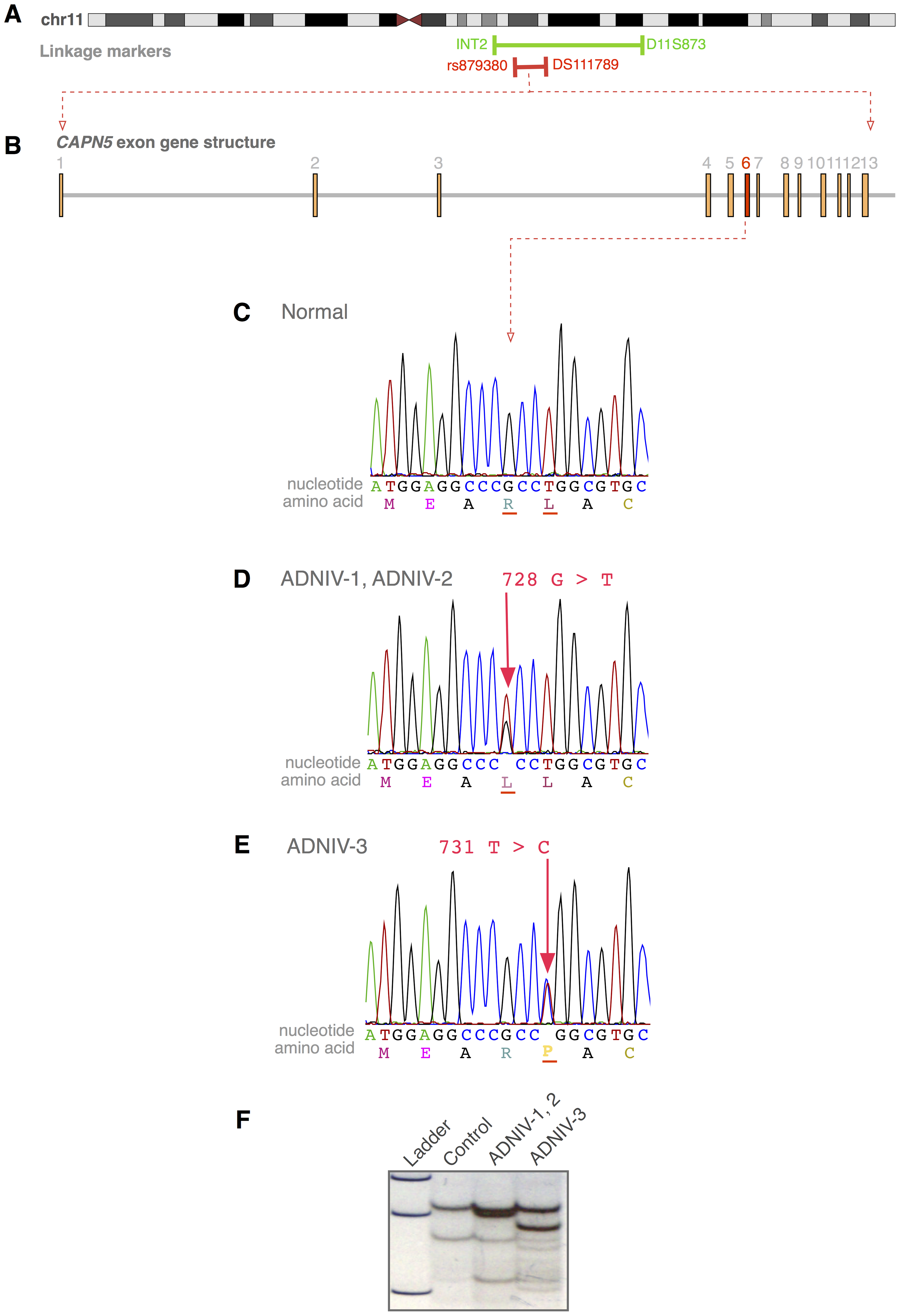 The <i>CAPN5</i> gene harbors mutations in exon 6 of ADNIV subjects.