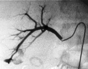 Selektivní angiografie u masivní hematurie pravé renální tepny po PCNL, patrný mohutný AV-zkrat v oblasti dolního segmentu ledviny.