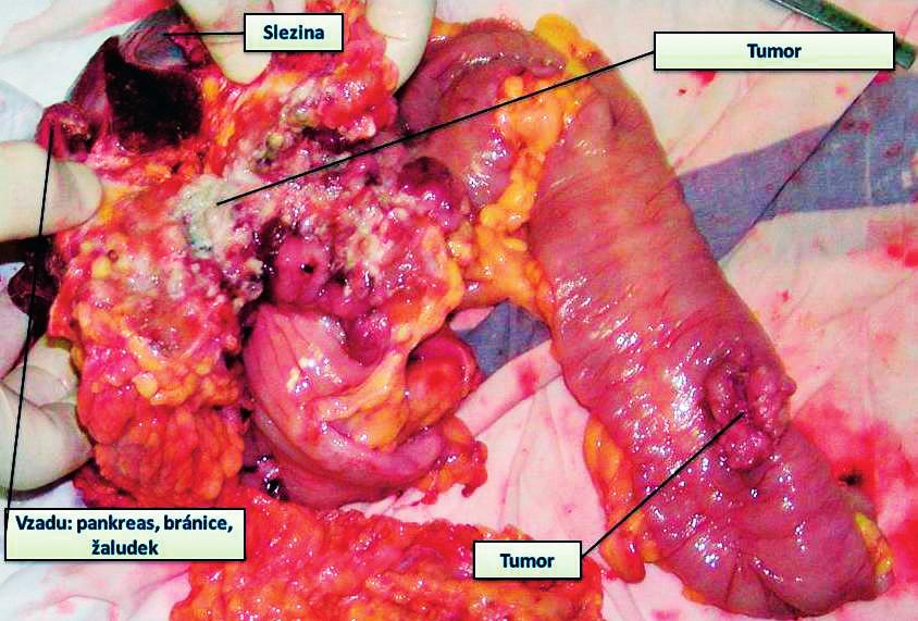 Nádor příčného tračníku prorůstající do bránice, žaludku, kaudy pankreatu, současně další nádor na tračníku – provedena multiorgánová resekce