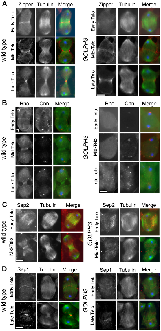 GOLPH3 is required for maintaining Rho1 at the equatorial cortex and stabilizing Septin and Myosin rings.