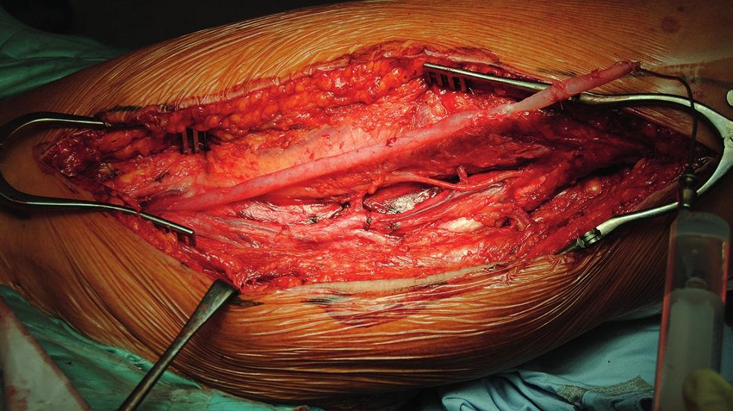 Vypreparovaná vena femoralis superficialis s ponechanou junkcí v třísle (soutok s vena profunda femoris) Fig. 1: Dissected the superficial femoral vein with left junction in the groin (with the vena profunda femoris)