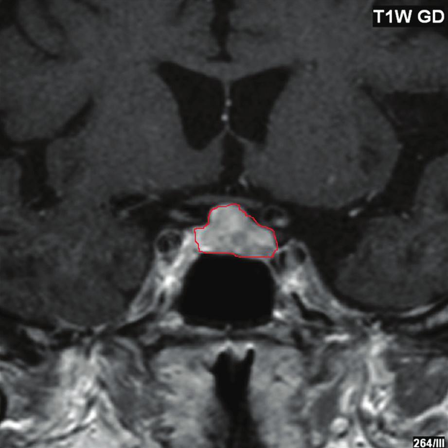 T1WI s podáním kontrastní látky, (afunkční) makroadenom hypofýzy 20 x 15 mm v kontaktu  s chiasmatem