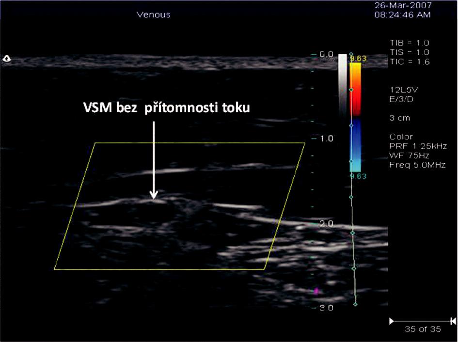 Příčný řez VSM v sono obraze po RFITT s odstupem 63 dnů od operace Obr. 4. Ultrasound view of a transverze section of the VSM, 63 days after the RFITT procedure