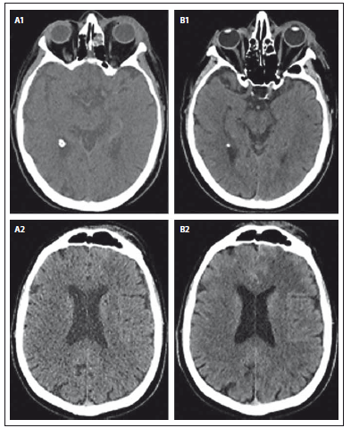 Fig. 1. A 75-year-old diabetic male with left side orbital cellulitis, initial CT (A1, A2) and the next day CT (B1, B2) demonstrates left eyelids swelling and was a partial mucosal thickening of the left ethmoids.