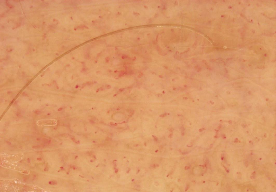 Skvrna café-au-lait – dermatoskopický obraz (hýždě, zvětšeno 20krát)