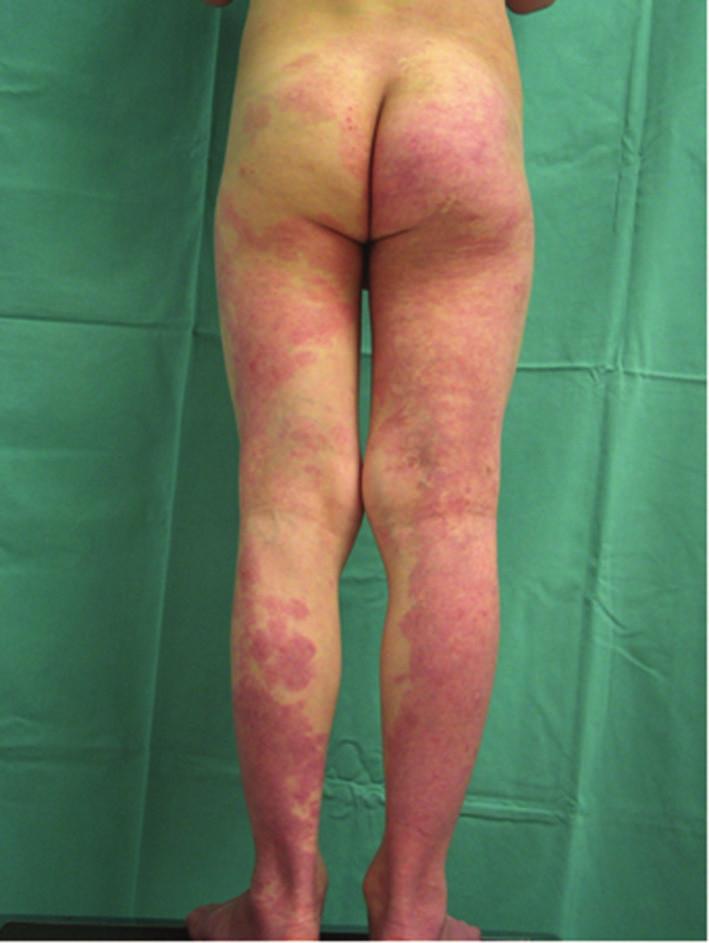 Kapilární malformace u syndromu Klippela-Trenaunayho