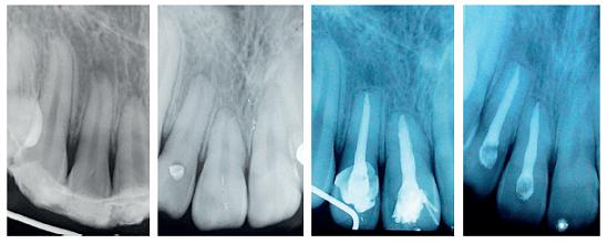 Obr. 1a, b, c, d Průběh hojení po replantaci (povrchová resorpce apexu) Fig. 1a, b, c, d Healing after replantation (apical surface resorption)
