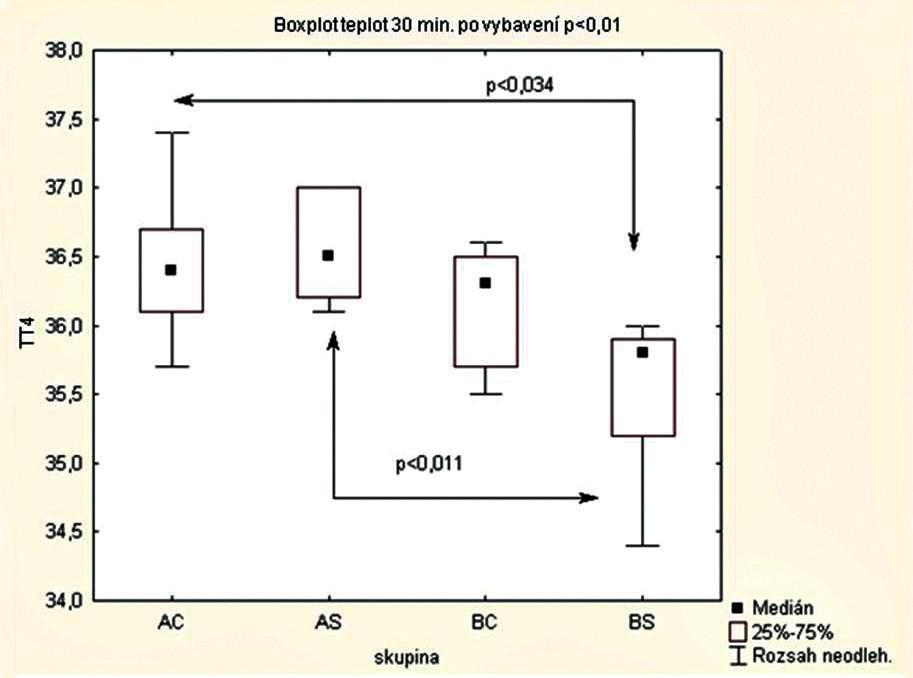Porovnání tělesné teploty matek 30 minut po vybavení plodu AC – celková anestezie při podávání ohřátých roztoků N = 9, AS – subarachnoidální anestezie při podávání ohřátých roztoků  N = 7, BC – celková anestezie při podávání roztoků o pokojové teplotě N = 7, BS – subarachnoidální anestezie při podávání roztoků o pokojové teplotě N = 6, neohřátá teplota v subarachnoidální anestezii