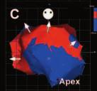 Sekvence snímků z elektroanatomické propagační mapy levé komory srdeční (pravá šikmá projekce) vytvořené při fokální komorové tachykardii u pacienta se závažnou poinfarktovou dysfunkcí levé komory a rozsáhlým anteroseptálním aneuryzmatem. Červená barva ukazuje šíření elektrického vzruchu.