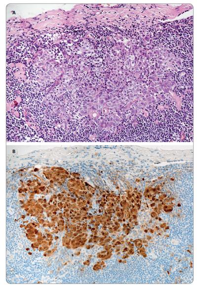 A. Mikrometastáza melanomu v sentinelové uzlině – nádorové buňky tvoří shluk o průměru cca 0,5 mm těsně pod pouzdrem (hematoxylin-eosin; 200×). B. Tatáž mikrometastáza – imunohistochemické ozřejmení nádorových buněk s protilátkou proti S100 proteinu (IHC S100 protein: DAB-hematoxylin; 200×).