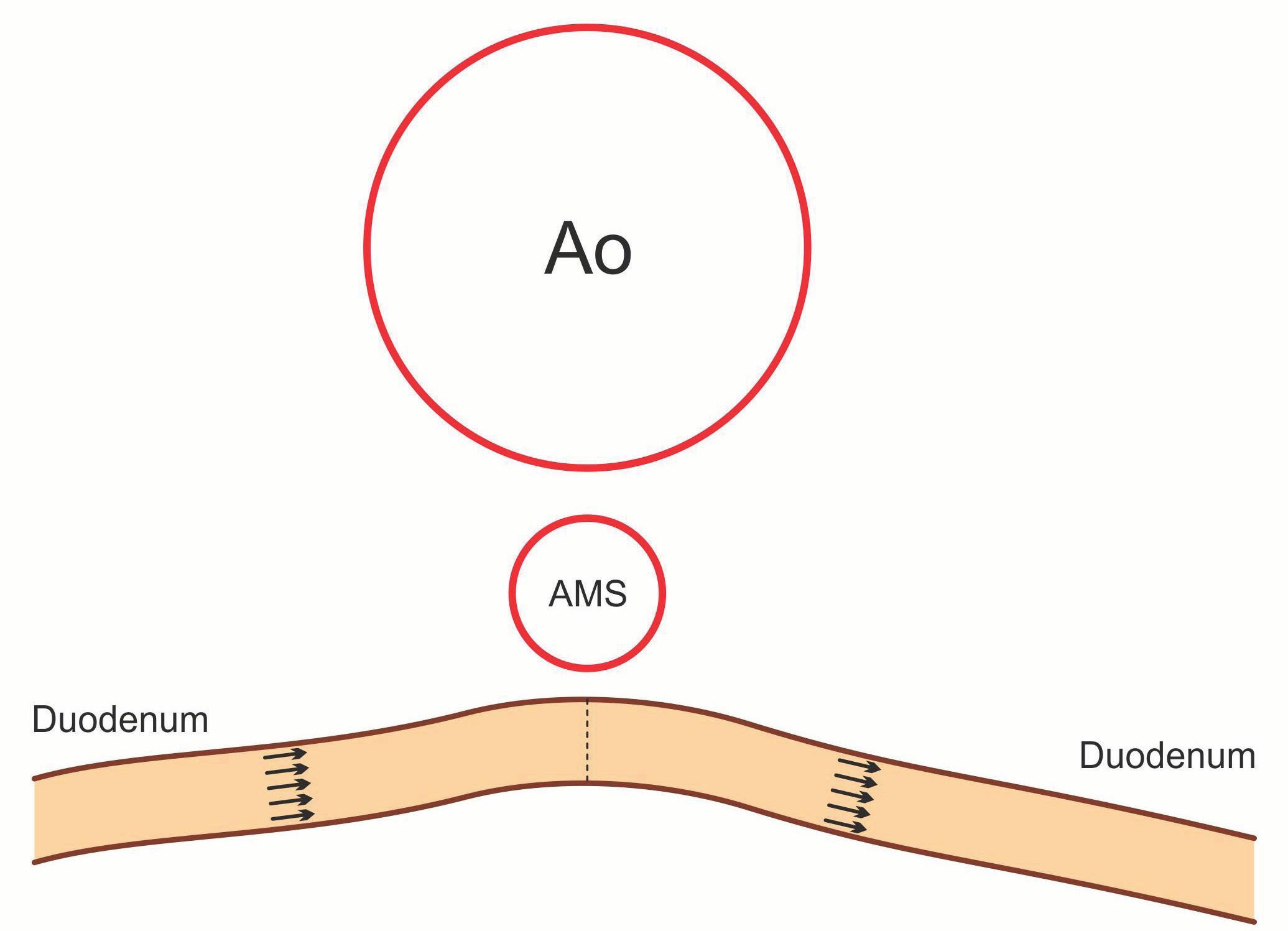 Schematické znázornění – duodeno-duodeno anastomóza end-to-end. Fig. 7. Morphology of duodeno-duodeno anastomosis end-to-end.