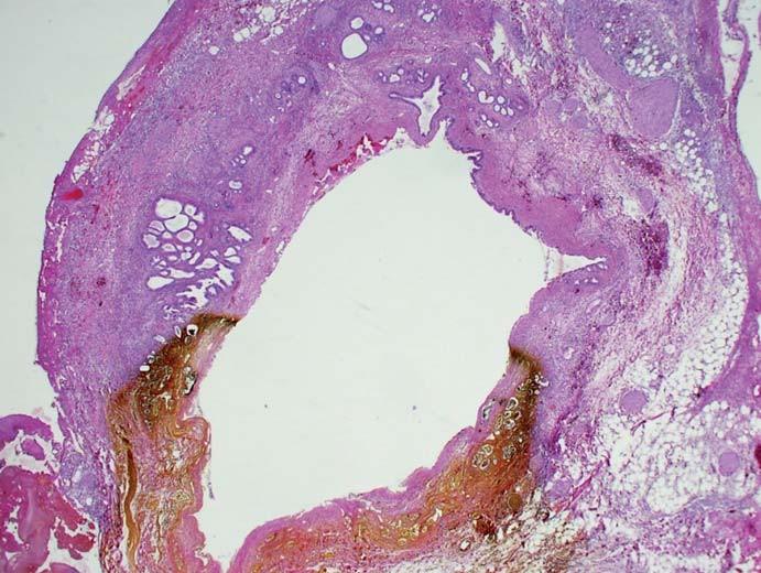 Ischemická nekróza úseku stěny extrahepatálního žlučovodu, při ERCP se projeví jako leak. Místo nekrózy je prosáklé žlučí.