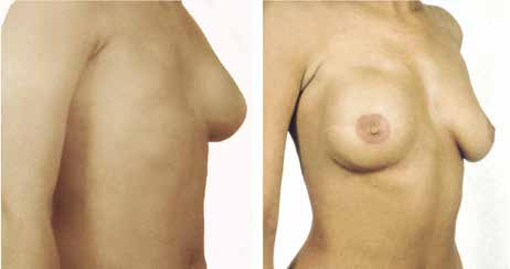 Rekonstrukce prsu s užitím m. latissimus dorsi a implantátem
